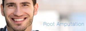 Root Amputation